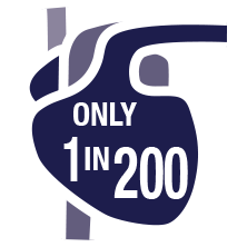 Only 1 in 200 People qualifies to donate an organ